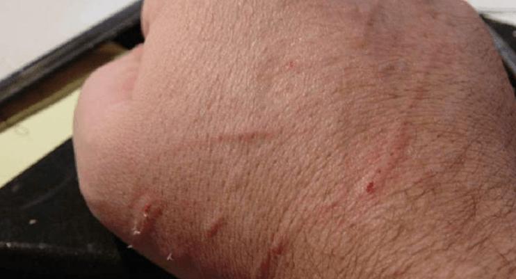 Kedi Tırmığı Hastalığı Nedir? Tedavisi ve Tedavi Yöntemleri Nelerdir?