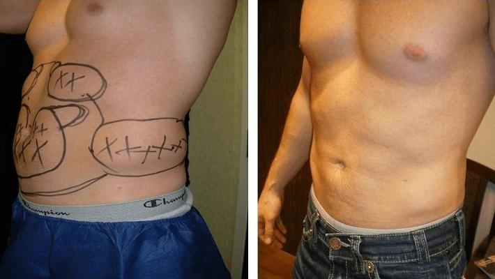 Vaser Liposuction Ameliyatı Nedir ve Nasıl Yapılır? Tüm Detayları